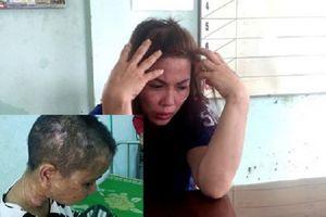 Vụ nữ giúp việc bị chủ nhà cắt tai, bẻ răng, đạp sẩy thai: Thêm 5 người liên quan bị triệu tập