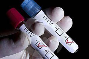 Triệu chứng HIV và các giai đoạn diễn biến của HIV ai cũng cần biết