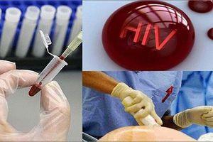 Dấu hiệu nhận biết và quá trình chuyển từ HIV sang AIDS thế nào?