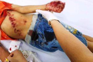 Người mẹ hoảng hồn khi thấy con bê bết máu nằm bên đống đồ chơi phát nổ