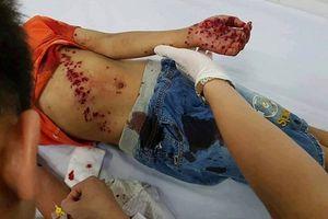 Nghệ An: Bé 8 tuổi bị thương nặng vì đồ chơi bằng pin phát nổ