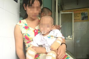 Bé gái 2 tuổi bị cắt tứ chi vì viêm não mô cầu