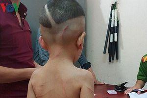 Bắt giam cha dượng hành hung dã man bé 3 tuổi