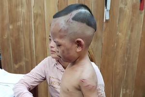 Kiên Giang: Bé trai 3 tuổi bị cha dượng bạo hành dã man