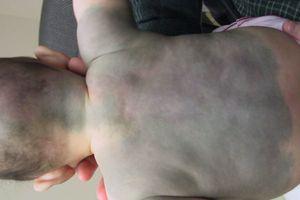 Con mới sinh có nhiều BỚT XANH trên người và mặt, mẹ có nên đi tẩy xóa cho bé không?