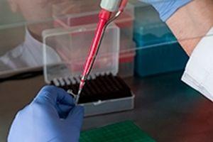 Nga phát triển phương pháp chẩn đoán sớm ung thư phối qua máu