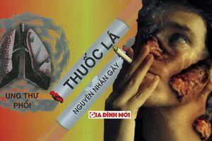 Bác sĩ ung bướu giải đáp vì sao nhiều người không hút thuốc lá vẫn bị ung thư phổi?