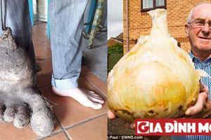 Củ hành 'khổng lồ', củ khoai tây hình bàn chân người
