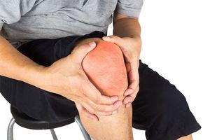 Tư vấn miễn phí về bệnh gout