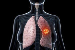 Người bị ung thư phổi giai đoạn cuối có thể sống được bao lâu?