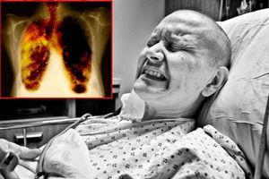 Mai Phương bị ung thư phổi: Tại sao bệnh này thường gây đau đớn cho người bệnh?