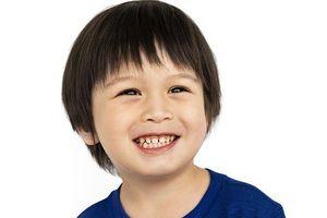 'Soi' kỹ lượng đường ẩn giấu trong 6 món ăn tưởng chừng vô hại cho răng của trẻ