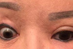 Người phụ nữ không thể nhắm mắt do biến chứng sau cắt mí