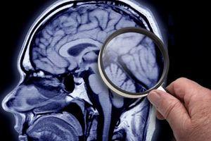 Vì sao Facebook nghiên cứu hình ảnh y tế?