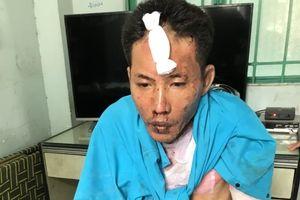 Chồng hờ tưới xăng đốt vợ và 2 con riêng: 2 đứa trẻ đã tử vong