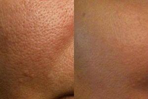 Lỗ chân lông to cỡ nào cũng bị 'là phẳng' nếu bạn biết đến 3 'thần dược' tái tạo làn da này