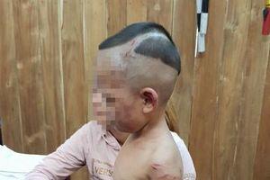 Sớm xét xử gã cha dượng hành hạ dã man bé trai 3 tuổi ở Phú Quốc