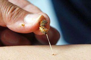 Bé gái 8 tuổi dân tộc Mông bị ong vò vẽ đốt hơn 50 nốt vào người