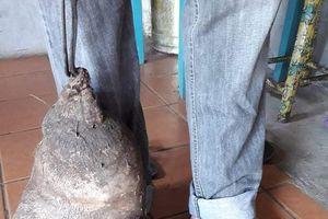Củ khoai tây kỳ lạ giống hệt bàn chân người khổng lồ gây xôn xao