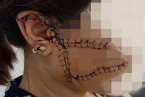 Giám định lại thương tích nạn nhân bị chồng 'hờ' rạch mặt ở Bắc Giang