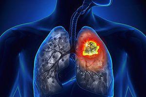 90% bệnh nhân ung thư phổi là do nghiện thuốc lá?