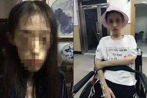 Cô gái 21 tuổi tự bỏ đói mình 3 năm, thân hình teo tóp chỉ còn 25kg, nguy cơ mắc bệnh não vì lý do đáng trách