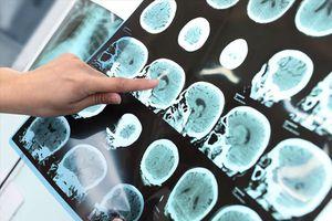 Đột quỵ não: Không còn chỉ người già, càng ngày thanh niên ngoài 20 càng hay mắc phải
