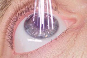 Cận thị và các phương pháp điều trị