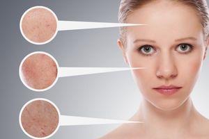 5 công thức mặt nạ tự nhiên giải nguy cho lỗ chân lông to mà bạn nên biết