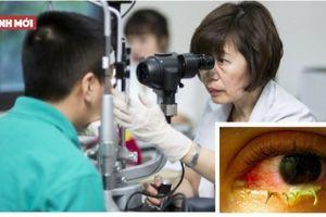 Lý do khiến mỗi ngày có khoảng 200 trẻ đau mắt đỏ phải nhập viện