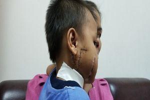 Theo cha mẹ đến chỗ làm, bé trai 6 tuổi bị cánh quạt chém nát mặt