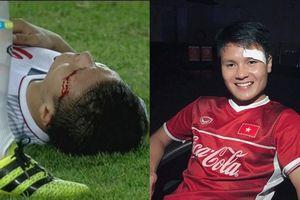 Đổ máu trên sân, Quang Hải động viên người hâm mộ: 'Tôi vẫn khỏe và đẹp trai nhé!'