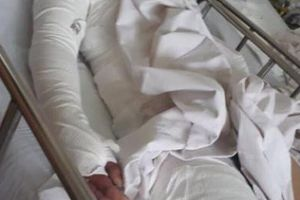 Tia hi vọng mong manh của người mẹ có 2 con bị chồng tẩm xăng thiêu chết