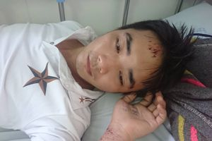 Nam công nhân ở TP.HCM tố bị công an xã còng tay, đánh đập dã man vì nghi lấy trộm giày