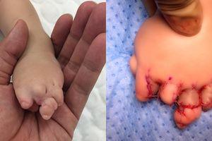 Vòng thắt bẩm sinh khiến bé gái sinh ra bị dính chặt ngón tay, chân