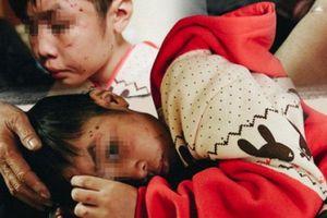 Nỗi ám ảnh của bé trai 10 tuổi sau nhiều tháng bị bố, mẹ kế bạo hành