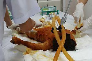 Đốt lá chuối gây cháy nhà, bé gái 20 tháng tuổi bị bỏng 90% cơ thể