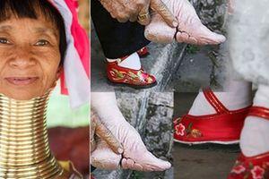 Làm đẹp kỳ quái, đau đớn: Bó chân gót sen, đục mũi, kéo cổ dài