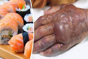 Người đàn ông bị mất đi một nửa cánh tay do thường xuyên ăn món ăn được nhiều người ưa thích