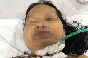 Cứu người phụ nữ bị dao đâm xuyên cổ, đứt khí quản