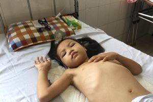 Bé gái bị lao cột sống cần được giúp đỡ gấp