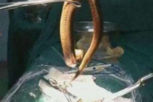 Người đàn ông lĩnh hậu quả vì nuốt lươn sống dài 30cm vào bụng