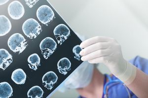 Đột quỵ làm tăng nguy cơ sa sút trí tuệ