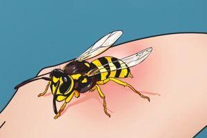 Cách xử trí kịp thời khi bị ong đốt