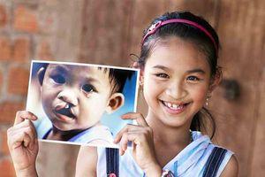 Operation Smile Việt Nam thực hiện chương trình phẫu thuật nhân đạo cho trẻ bị dị tật bẩm sinh