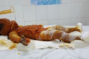 Bé gái bỏng 90% trong vụ đốt lá chuối khô đã tử vong