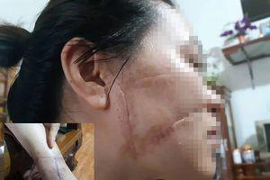 Nỗi đau vợ bị chồng rạch mặt, cắt gân vì ghen