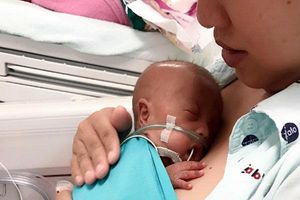 Hành trình nuôi dưỡng bé sinh non 24 tuần, chỉ nặng 600gr