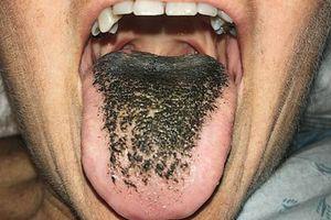 Người phụ nữ sợ hãi vì lưỡi chuyển màu đen như bã chè