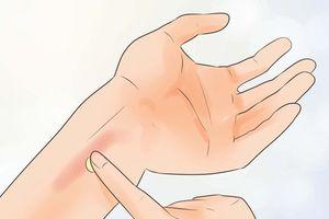 Mẹo đơn giản điều trị vết bỏng nhẹ tại nhà